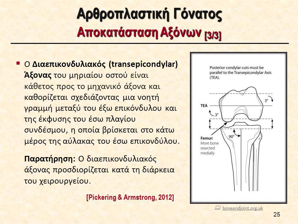 Αρθροπλαστική Γόνατος Αντικατάσταση Οστικών Επιφανειών [1/3]